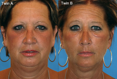 влияет ли курение на кожу лица отзывы тел подозреваемых