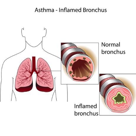 how to tell if you have bronchitis or asthma