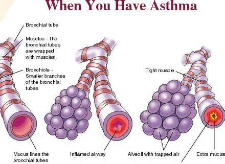 Main Causes Of Asthma Airbetter Org